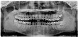 Impacted wisdom teeth.jpg, źródło: Wikimedia commons