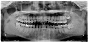 Impacted wisdom teeth.jpg, źródło: Wikimedia commons